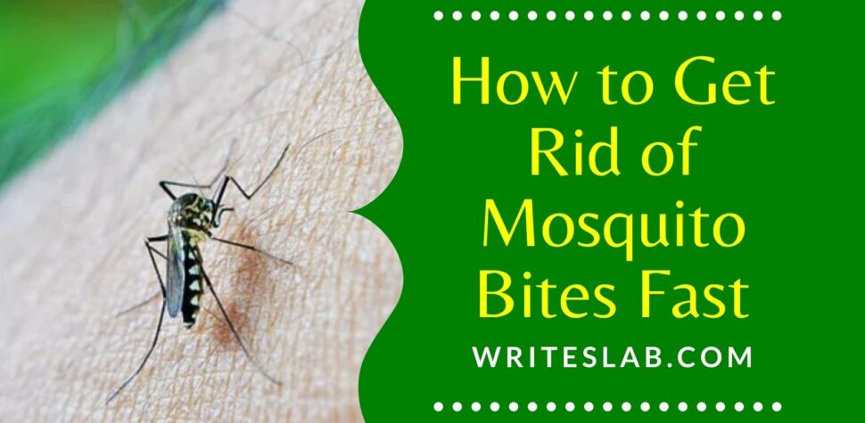 How to Get Rid of Mosquito Bites Fast